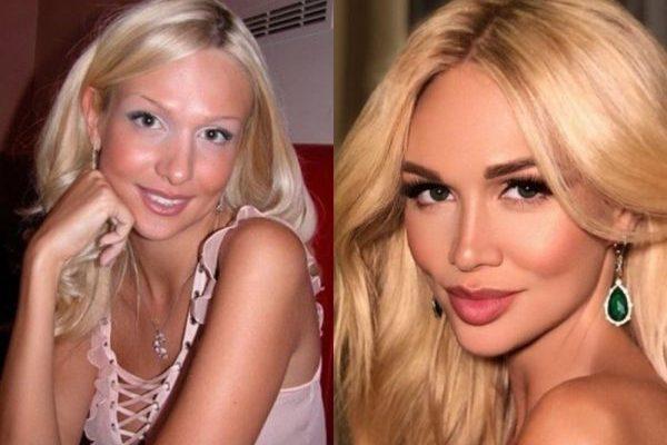 Признанные красавицы, ранее проигравшие конкурсы красоты