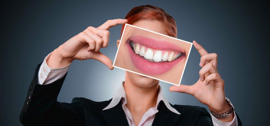 Белая диета: что можно и нельзя есть после отбеливания зубов?